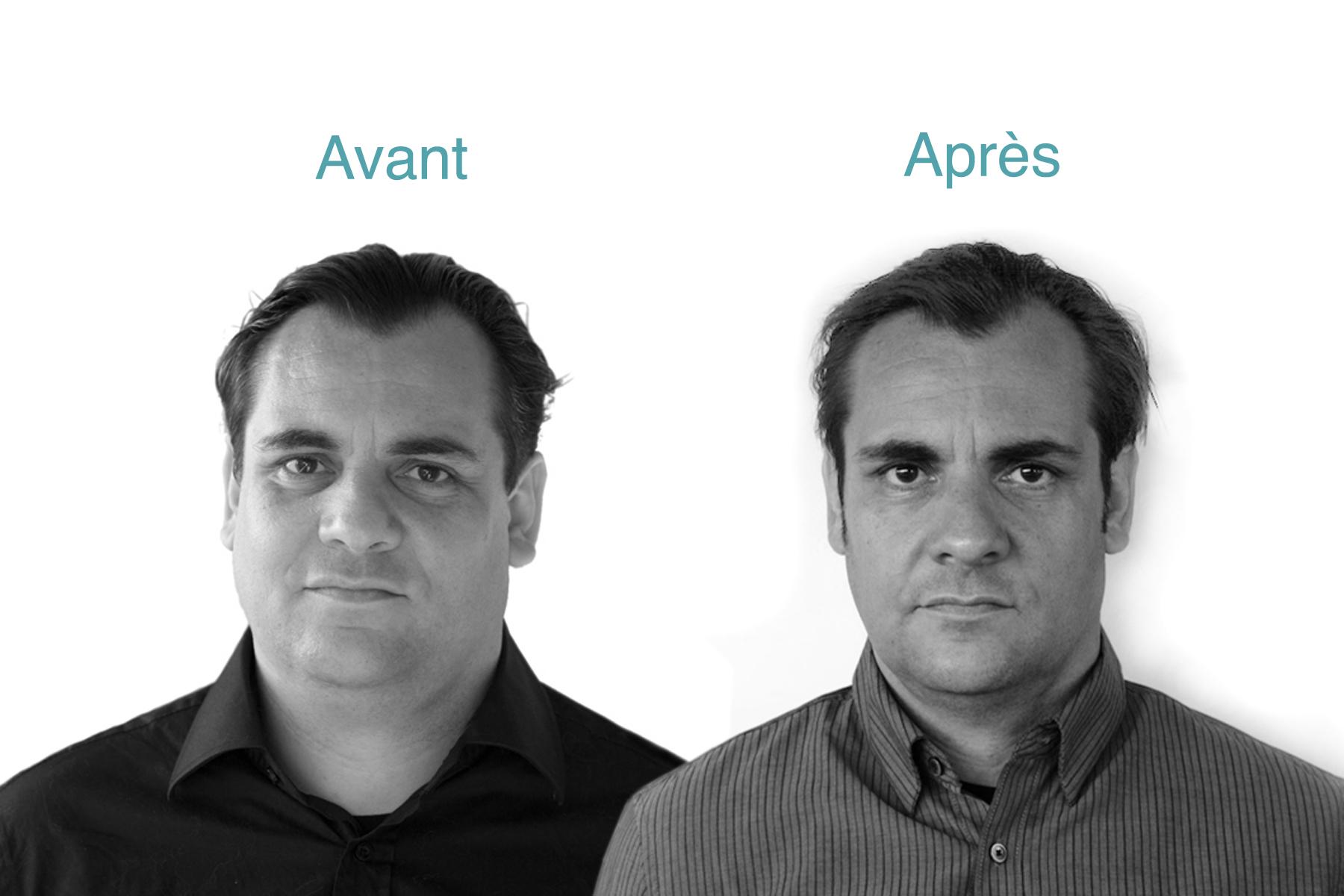 La_methode_Tunzini_Avant_Apres_Mincir_Sante